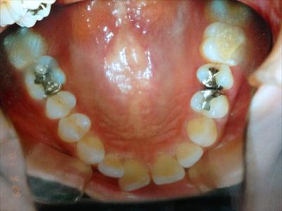 teeth00