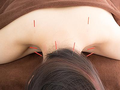 「背中の鍼」の画像検索結果